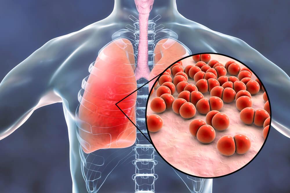 upala pluća Arija 2